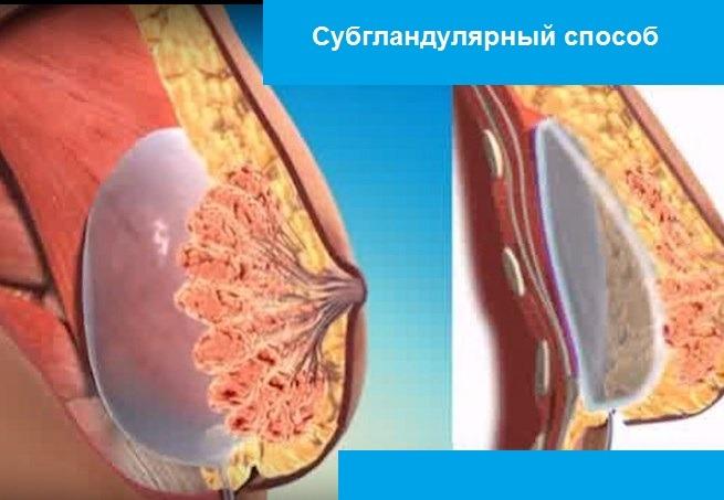 субгландулярный способ установки импланта