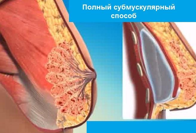 полный субмускулярный способ установки импланта