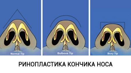 Все способы поднять кончик носа