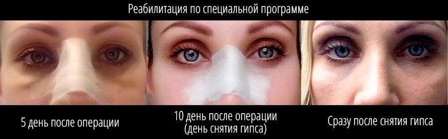 Что можно и что нельзя делать после ринопластики носа?