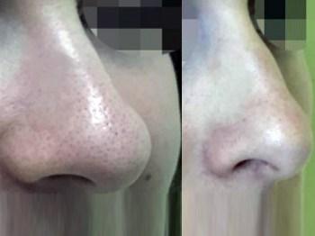 Какие дефекты форм носа самые сложные?