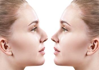 Нос с горбинкой до и после ринопластики