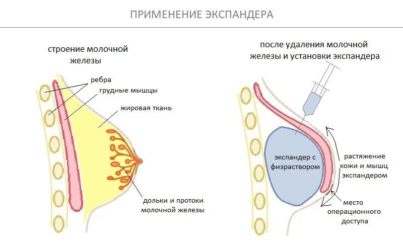 Применение экспандера для растяжения мышечной ткани и дермы