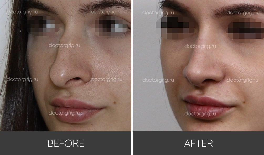 Удаление горбинки на носу до и после