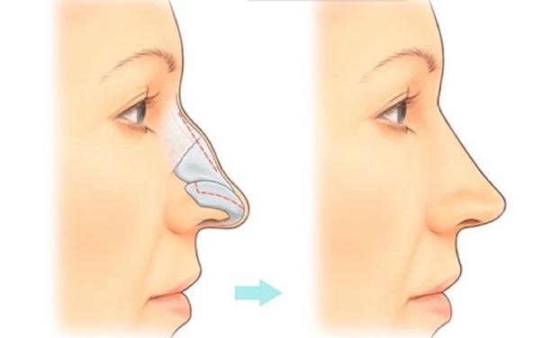 Изменение спинки носа после ринопластики