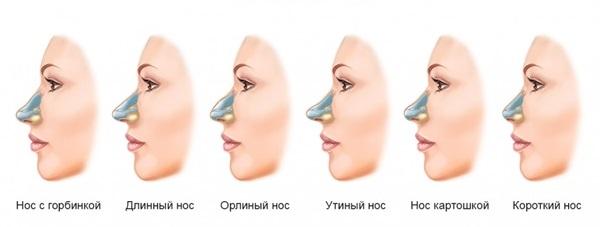 Наиболее распространенные типы носов