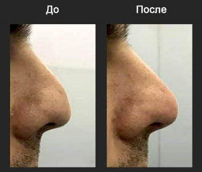 Контурная пластика - фото до и после